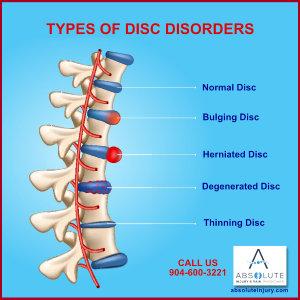 Understanding Intervertebral Disc Disorders