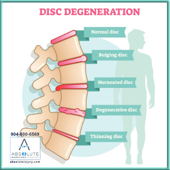 Types of Disc Injuries